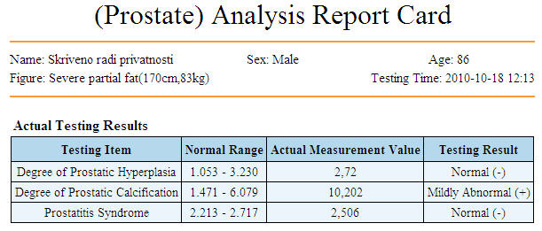 prostata82159050-A995-54A3-EDE3-F343C1F29502.jpg
