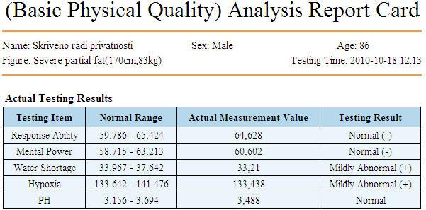 baz-fiz-kvalitet199F5324-20D3-9FDB-E4AB-AFDE191FEBF5.jpg