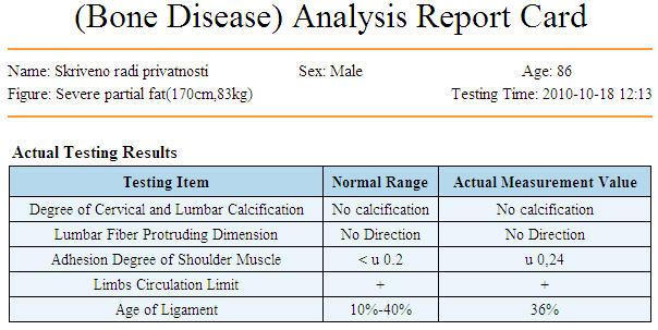 bolesti-kostijuC41997DA-5E45-EF7D-A59D-C268A4BE4DF7.jpg